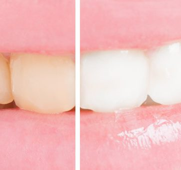 Tooth Whitening with Henry B. Bowman, DDS