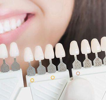 3 Ways Dental Veneers Could Change Your Life