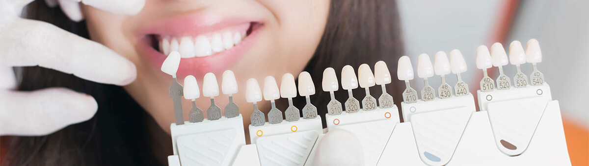 3 Ways Dental Veneers Could Change Your Life