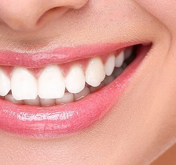 When Are Dental Onlays or Inlays Recommended?